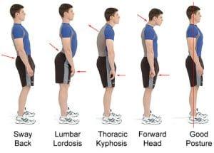 poor-posture-exercises-to-improve